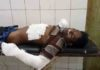 Youth injured while trying to take out transformer